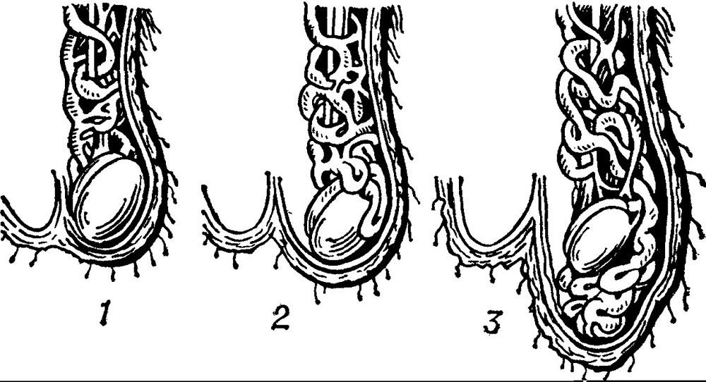 диагностика варикоцеое