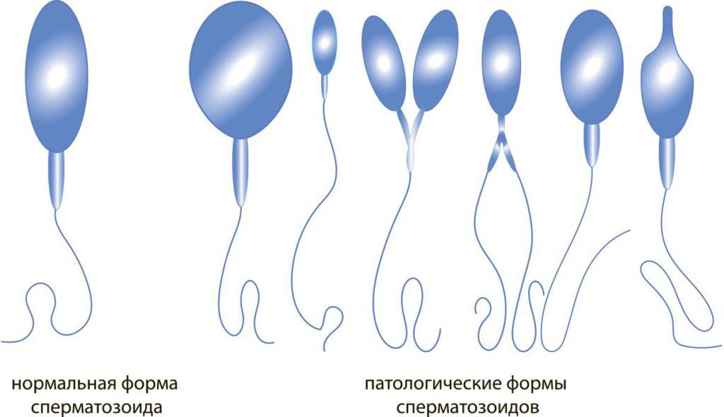 патология сперматозоидов