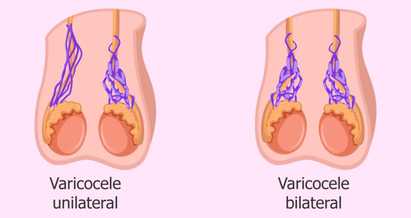 варикоцеле у мужчин