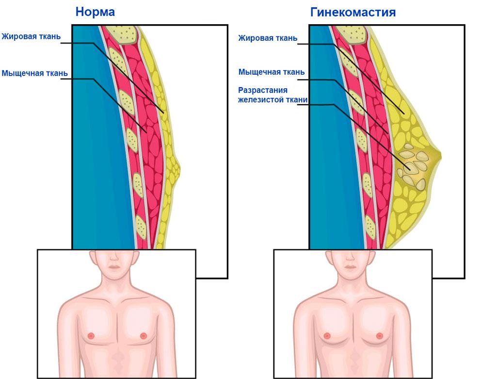 гипертрофия молочной железы у мужчин - 1