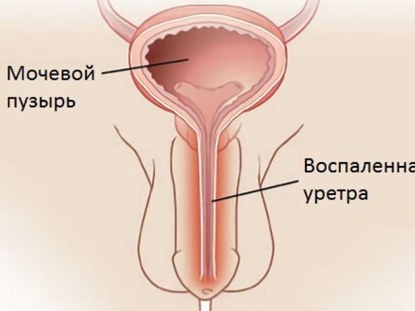 воспаление уретры у мужчин фото