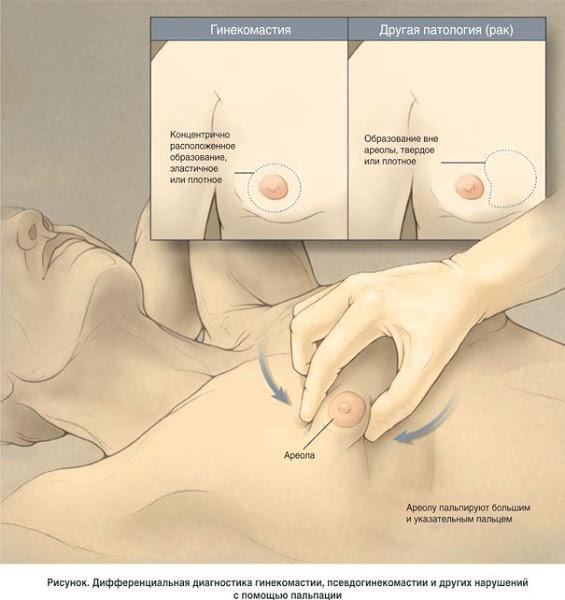 гинекомастия у мужчин - 3