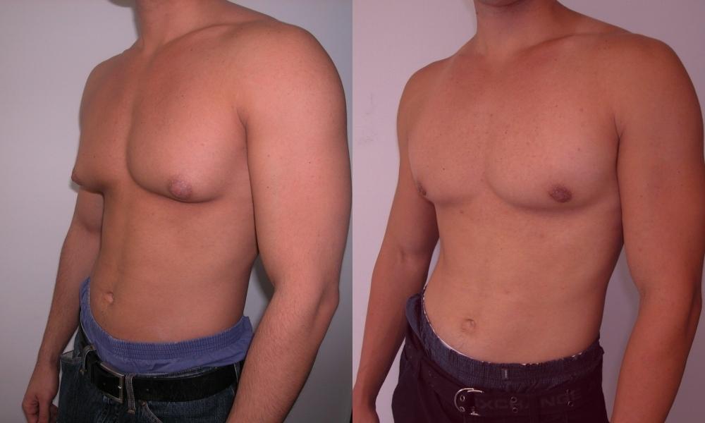 гинекомастия у мужчин - 2