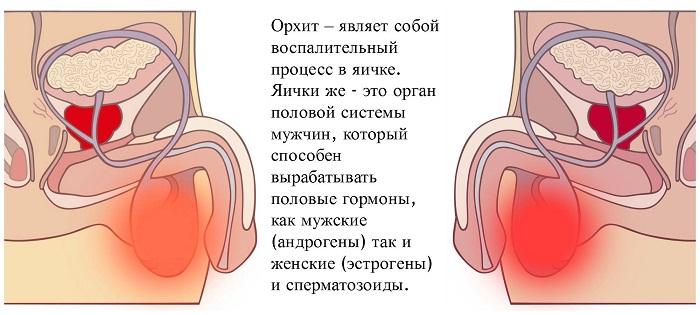 Симптомы воспаления яичек и их придатков