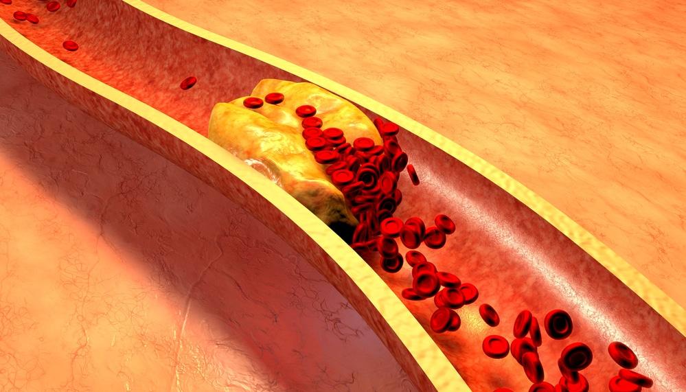 признаки гиперпролактинемии
