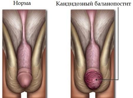 воспаление яичка лечение